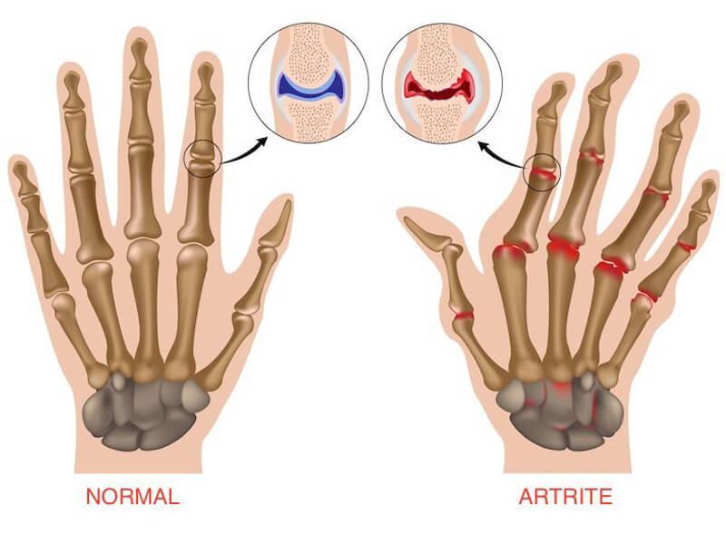 Tratamento Multidisciplinar para Combate a Dores - Artrite