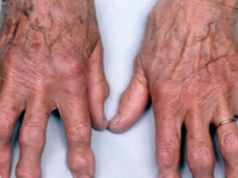Tratamento Multidisciplinar para Combate a Dores - Artrose
