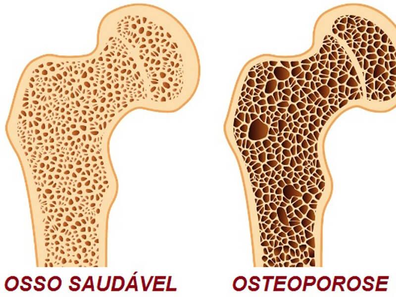 Tratamento Multidisciplinar para Combate a Dores - Osteoporose
